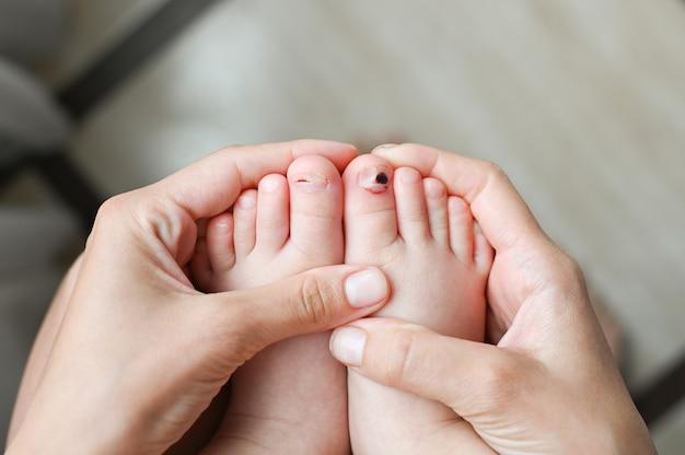 Мать держит ногу с раненым пальцем ноги