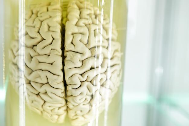 Анатомия человеческого органа мозга. часть человеческого тела в формалине. медицинские медицинские технологии