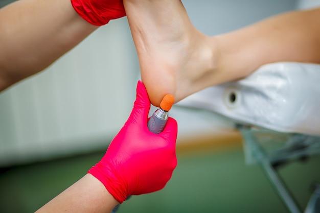 足治療医が足指の爪の真菌を治療しています。足病治療。