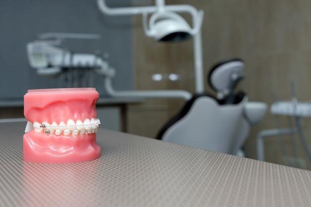 歯列矯正モデルと歯科用ツール-さまざまな歯列矯正ブラケットまたはブレースのデモ用歯モデル。人工顎のクローズアップで歯に金属とセラミックのブレース