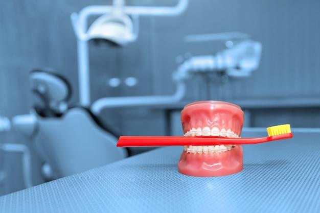 歯列矯正モデルと歯科用ツール-人工顎のクローズアップにセラミックブレースを備えた歯のモデル。赤い歯ブラシが付いている顎モデル。歯科、医学、医療機器、口腔病学のコンセプト