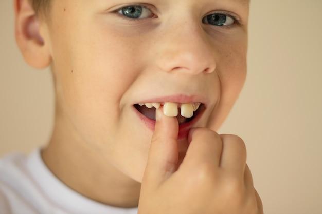Мальчик 7-10 лет в белой футболке качает пальцем выпавший зуб.