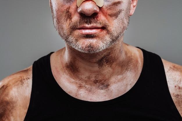 Избитый мужчина в черной футболке, похожий на наркомана и пьяного, стоит на сером фоне