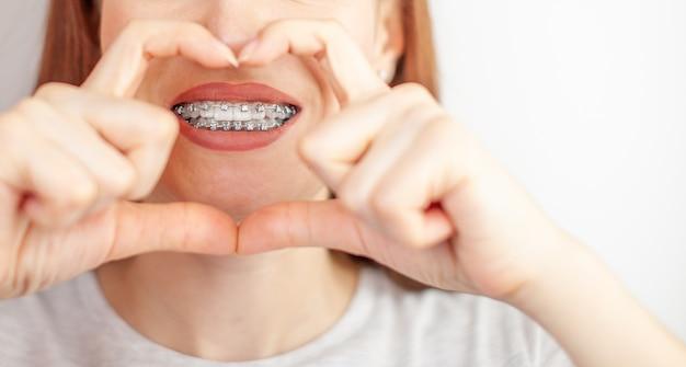 彼女の手からフレームを通して彼女の白い歯にブレースを持つ美しい女性。縮毛矯正と歯科衛生。歯の手入れ。