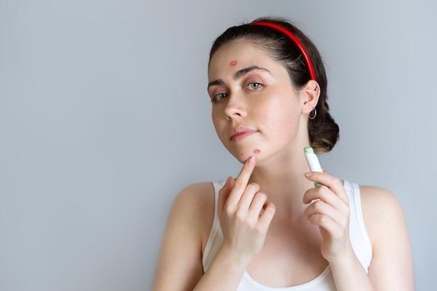 Красивая молодая женщина маскирует высыпания на лице карандашом-консилером. понятие о прыщах, взрослении и косметологии. скопируйте пространство.