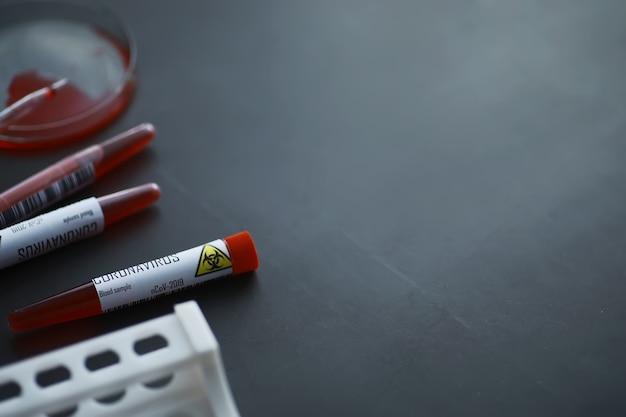 신체에서 위험한 바이러스 코로나바이러스를 테스트하기 위한 혈액 샘플. 코로나바이러스에 대한 테스트가 있는 테스트 튜브. 바이러스성 질병에 대한 실험실 연구.