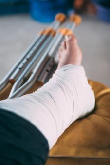 Сломанная нога в гипсе у человека с костылями