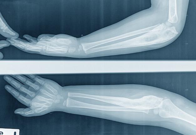Детский рентгеновский снимок локтя боковой вид предплечья в прямой видимости, вызванный канцеростеосаркомой кости локтевой кости
