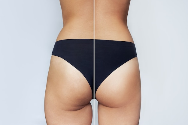 지방 흡입 또는 항 셀룰 라이트 치료 전후의 여성 엉덩이 클로즈업 다이어트 스포츠