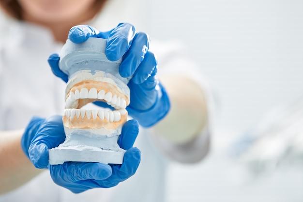 歯科医の女の子が手に顎のモデルを持っています