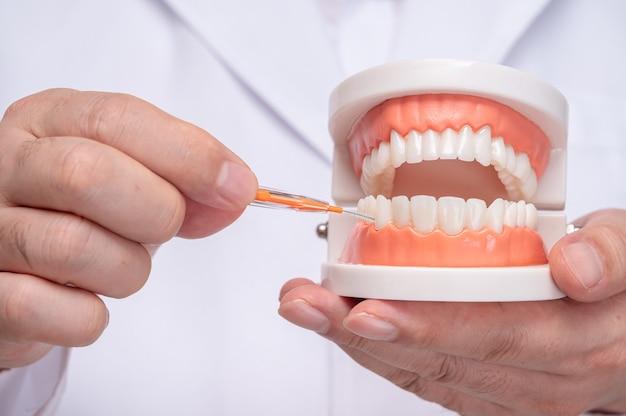 Стоматолог держит модель зуба и межзубную щетку.