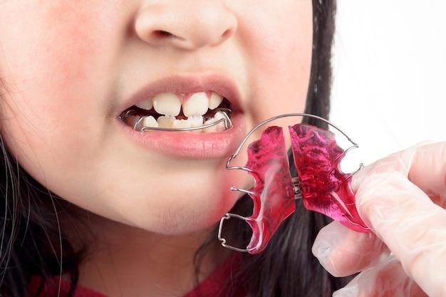 歯科医は、女の子の曲がった歯に中かっこを付けて矯正します