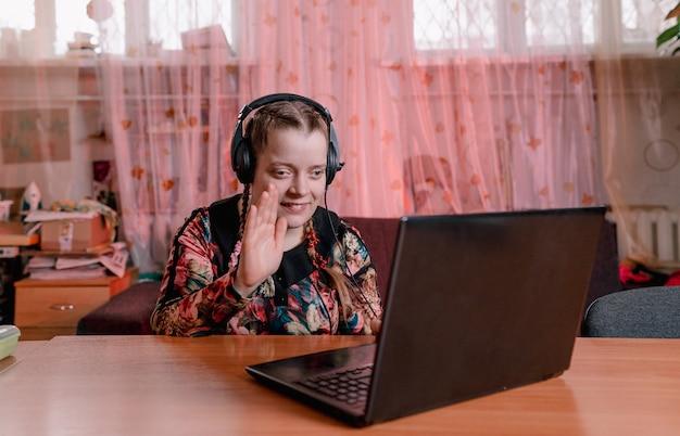 Девушка-инвалид с раскосыми глазами сидит за столом в наушниках и общается, глядя на ноутбук. обучение людей с ограниченными возможностями
