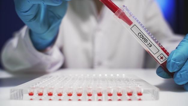 医師はコロナウイルスの血液管をチェックします。血液の入った試験管を持った医者。コロナウイルスコビッド19