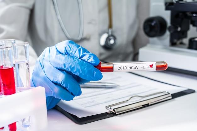 의사는 중국의 새로운 2019-ncov 코로나 바이러스에 대한 양성 혈액 검사가 포함 된 테스트 튜브를 손에 들고 있습니다.