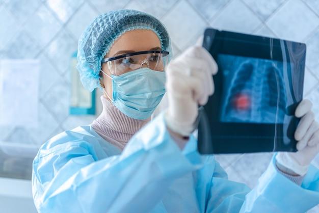 医師がコロナウイルス病の患者のフルオログラフィースキャンを見ています