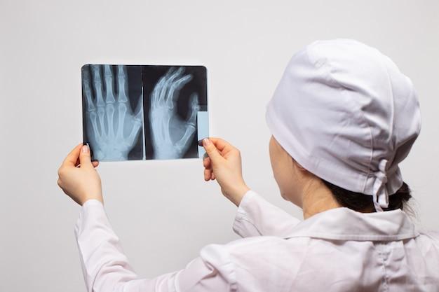Врач или радиолог держит рентгеновский снимок пациента с травмой руки.