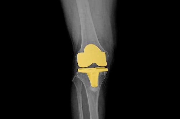 슬관절 전치환술 후 환자의 무릎의 필름 엑스레이.