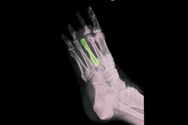 중족골 관절에서 세 번째 발가락의 외과적 절단을 보여주는 발 엑스레이.