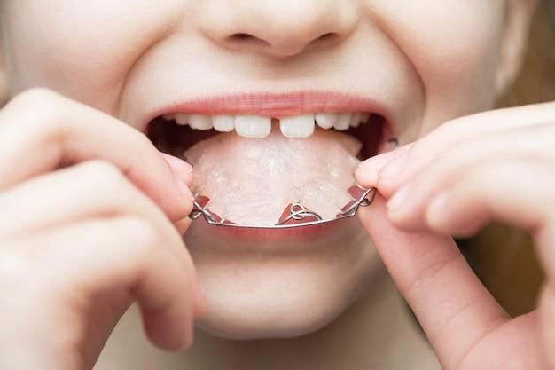 女の子は取り外し可能な歯科矯正器具のクローズアップを着ています
