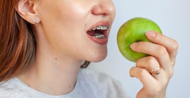 치아에 교정기를 가진 소녀가 녹색 사과를 물고 싶어합니다. 치아와 입술의 클로즈업 사진. 교정기에서 치아를 매끄럽게합니다. 밝은 단색 배경에 사진.