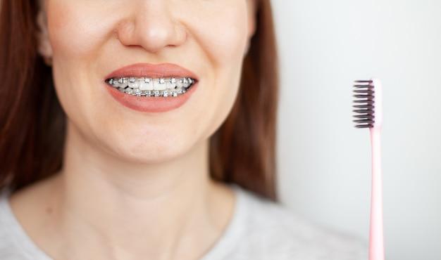 白い歯にブレースを付けた女の子が歯ブラシで歯を磨いています。縮毛矯正と歯科衛生。歯の手入れ。