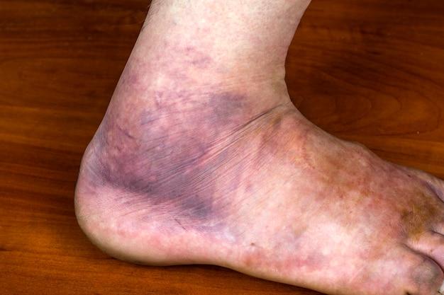 男の足に巨大な紫色のあざ。捻挫。