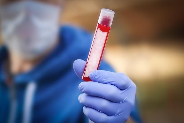 ウイルスの分析のための血液の入った試験管の手に。 covid-19は、感染性の空気人口にとって危険です。