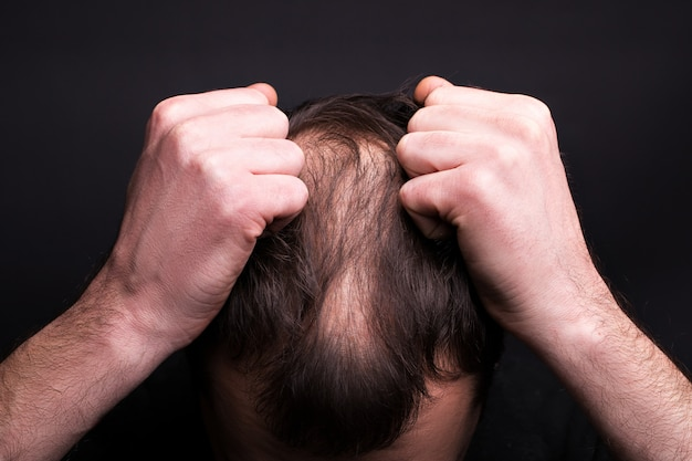 Мужчина хватает его за волосы. голова с облысением. проблема роста волос на голове.