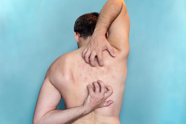 Мужчина чешет кожу на спине. зуд в спине. человек почесывает спину на синем фоне