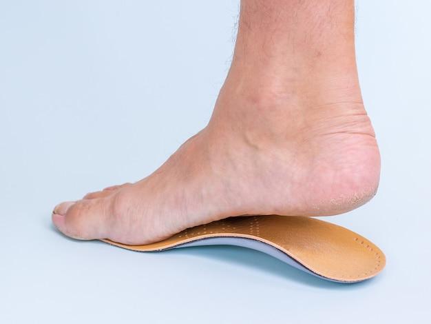 Мужчина примеряет правую ногу с признаками плоскостопия ортопедической стельки. средства для лечения плоскостопия.