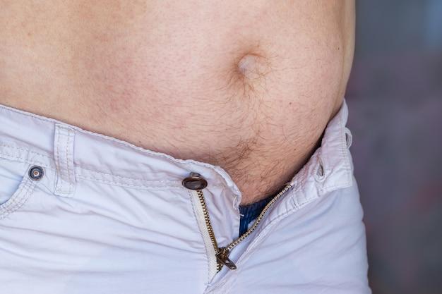 뱃살 큰 남자는 뚱뚱하고 뱃살이 많아서 바지가 너무 작다