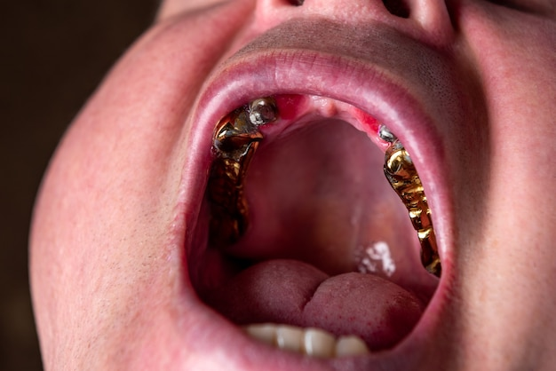 Мужчина без верхних передних зубов вставка зубов