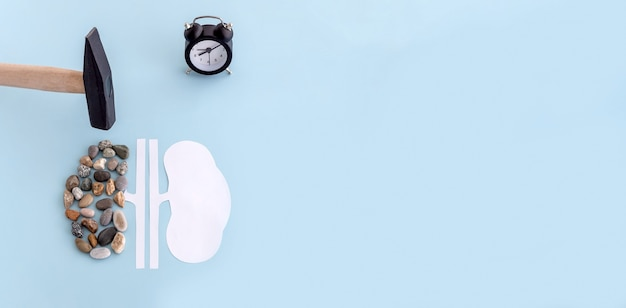 종이와 돌로 만든 인간의 신장 모형, 망치와 시계
