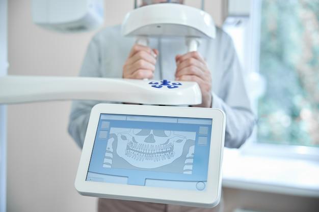 Пациент, стоящий за переключателем управления панерамического рентгеновского аппарата