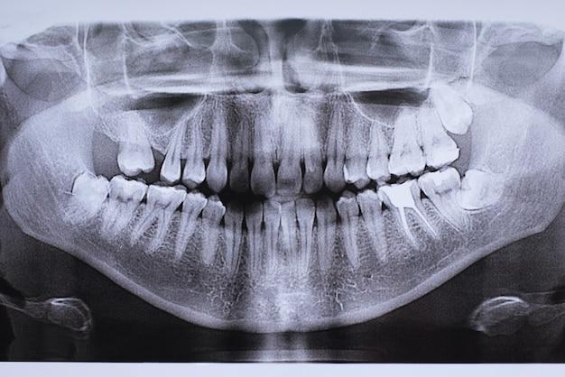 치아를 이식 한 턱 사진
