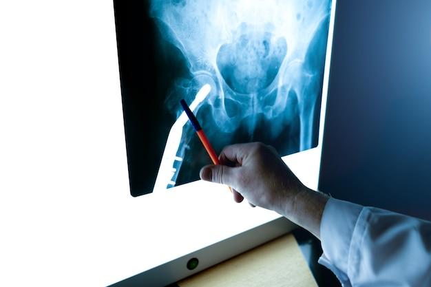 放射線科医は、股関節のx線写真をクローズアップで検査します。