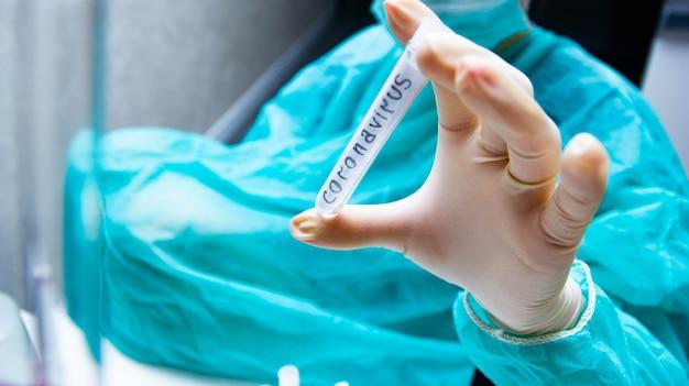 과학자는 바이러스 코로나바이러스가 있는 시험관을 손에 들고 있다
