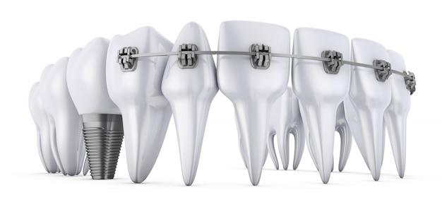 버팀대와 치과 임플란트가있는 치아