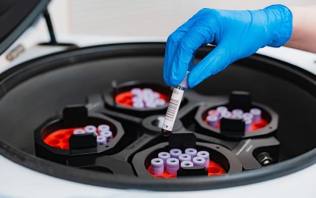 혈액 검사가있는 시험관을 파란색 고무 장갑으로 손으로 원심 분리기에 넣습니다.