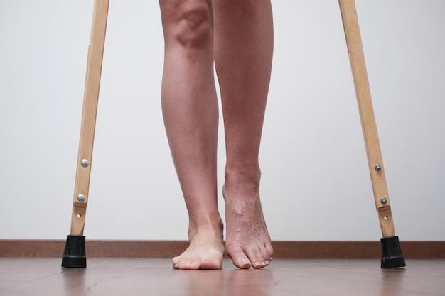 걷는 법을 배우기 위해 다리가 부러진 후의 여성. 석고 붕대 제거 후 재활.