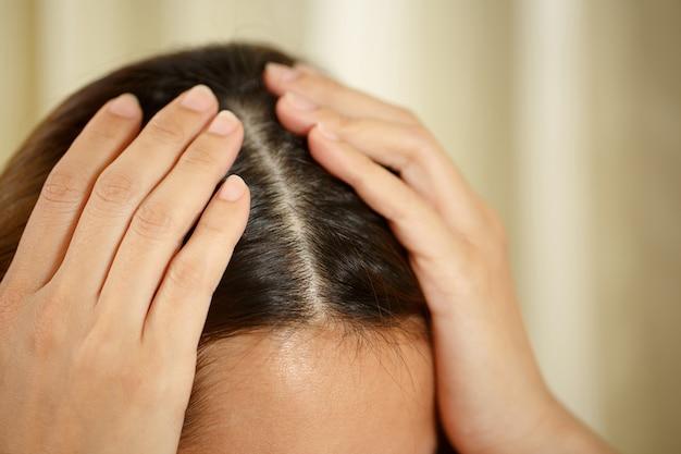 여성은 머리카락과 두피에 문제가 있습니다.