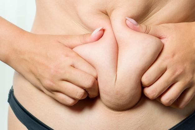 한 여성이 허리에 지방 주름을 잡고 있습니다. 비만의 개념적 이미지. 클로즈업, 흰색 절연