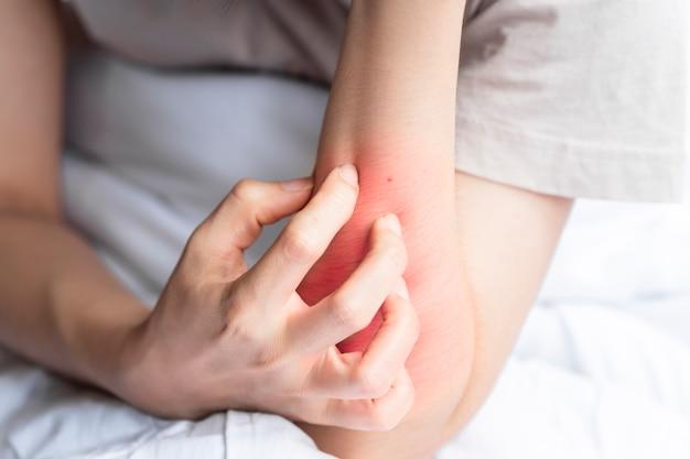 Женщина чешет красную покрытую волдырями руку из-за непереносимости инородного тела или укуса насекомого.