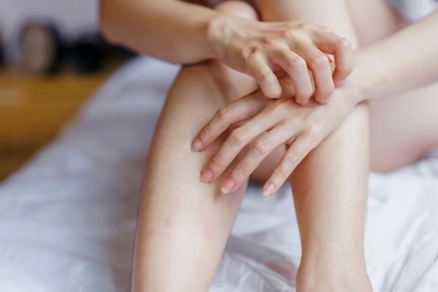 Рука женщины почесала руку о кровать из-за аллергической реакции.
