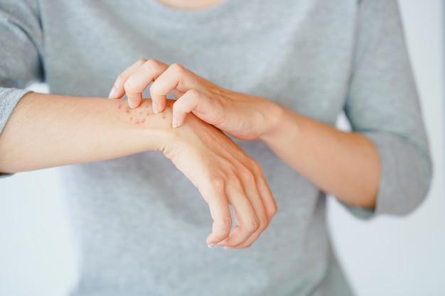 Женщина почесывает руку, испытывает аллергическую реакцию или укушена насекомым.