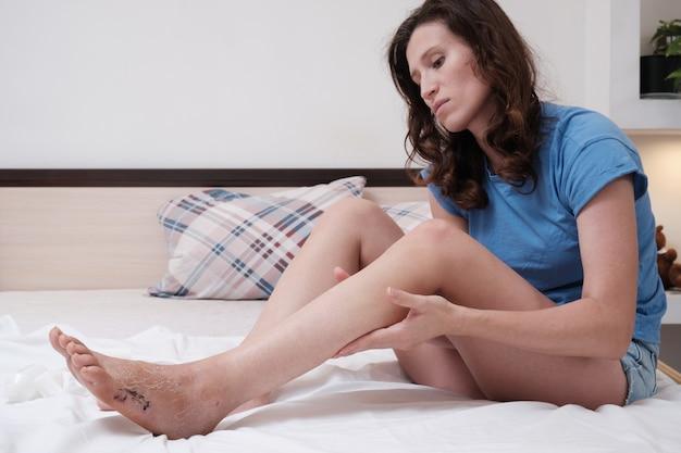 침대에 앉아있는 여성은 골절 후 다리를 마사지합니다. 부상 후 재활