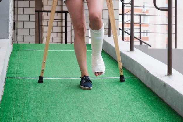 다리가 부러진 여성이 정형 목발을 사용하여 경사로를 걷고 있습니다.