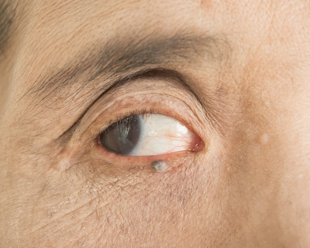 Abnormalities in the eyes