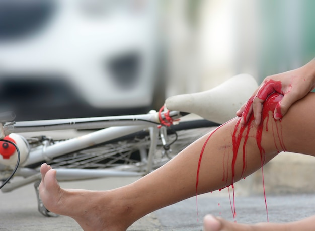 Accident from a bicycle collided with a car